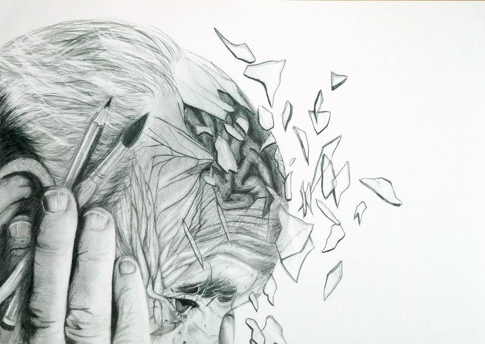 ARTzheimer